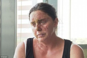 Acid attacks surge 30% in two years as thugs use easily-available chemicals to maim and disfigure victims